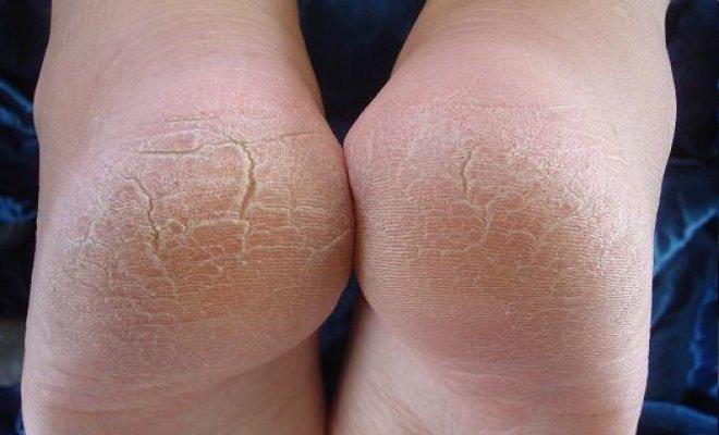 تشقق القدمين – وصفة سهلة لعلاجها تشققات القدمين